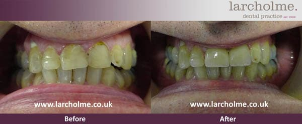 Dental Veneers before and after 1